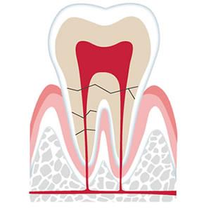 レーザー保存治療(歯根破折の治療)