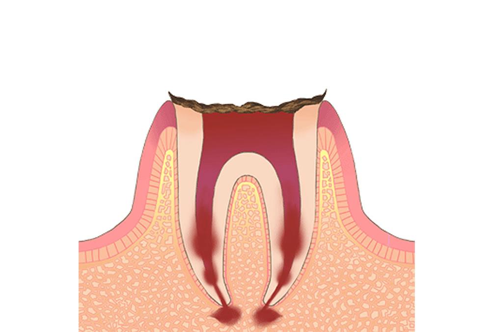 歯の根だけが残っている歯