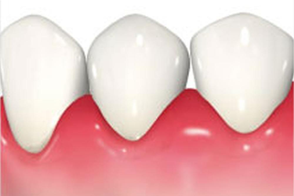 歯肉の炎症イメージ