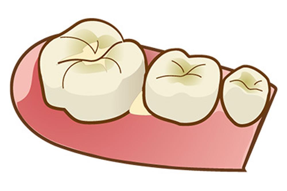 歯と歯の間に物が挟まるイメージ