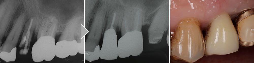 歯根破折の治療症例