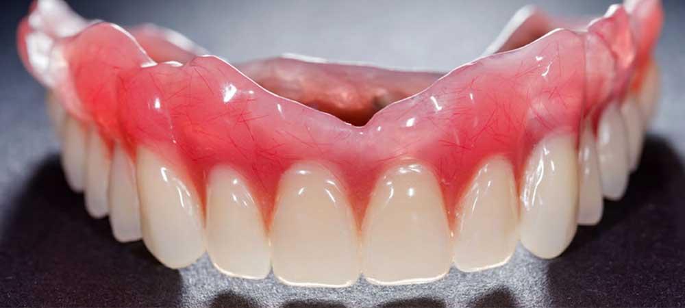 上北沢歯科の入れ歯治療
