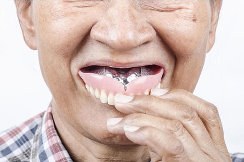 入れ歯の脱着