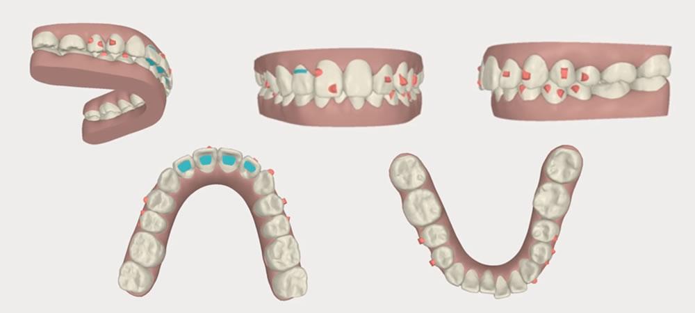 極力歯を抜かない矯正治療