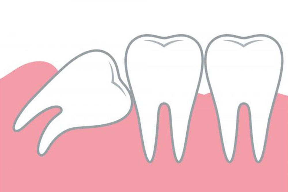 前の歯に干渉