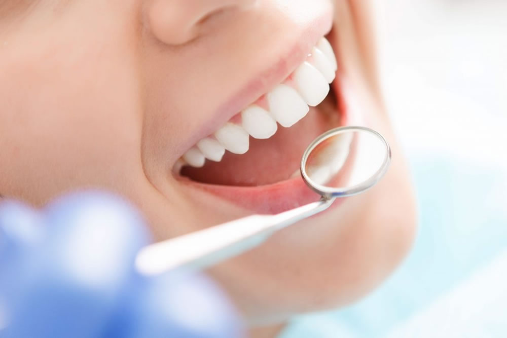 定期検診・歯のクリーニング